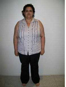 rebecca-12-months-before-sleeve-gastrectomy1 (1)