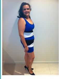 rebecca-12-months-before-sleeve-gastrectomy4