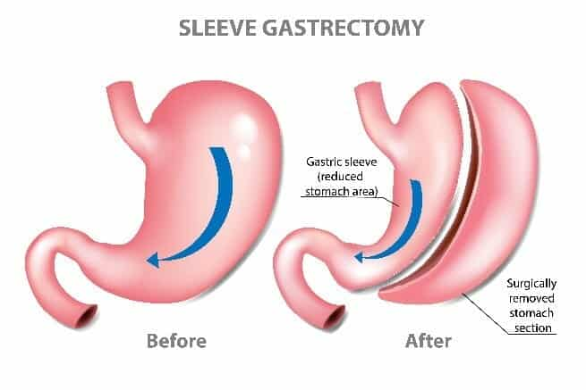 Gastric Sleeve Surgery Sydney